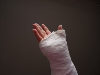 Injured hand with cast