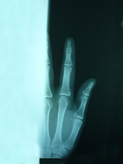 An x-ray of an index finger