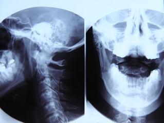 Vertebra radiography