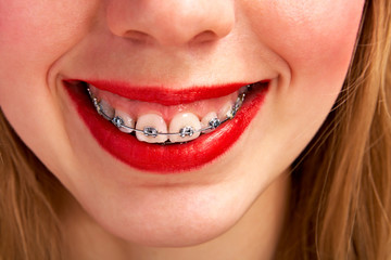 woman with brackets
