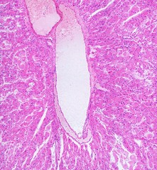 Microscope picture of lymphatic vessel