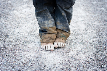 child's dirty feet. poorness concept Wall mural