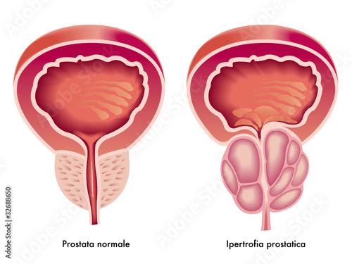 Forum cancro alla prostata sottoposti