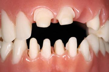 Zahnprothese, künstliche Zähne