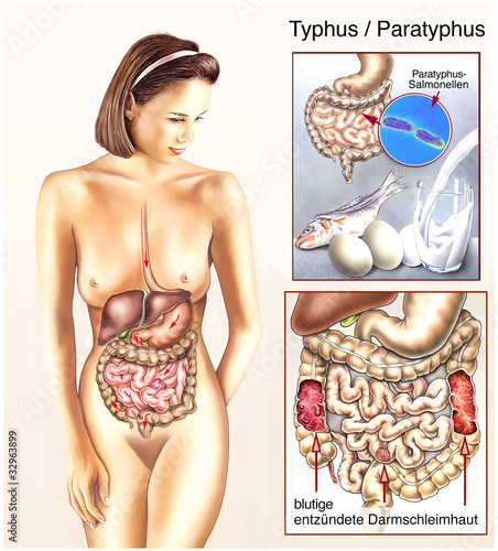 darm entzündet symptome