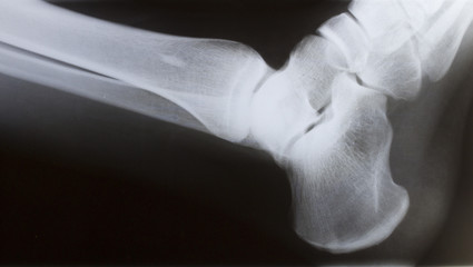 human foot ankle closeup and xray picture