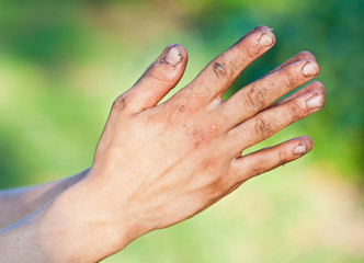 Old homeless man's dirty hands