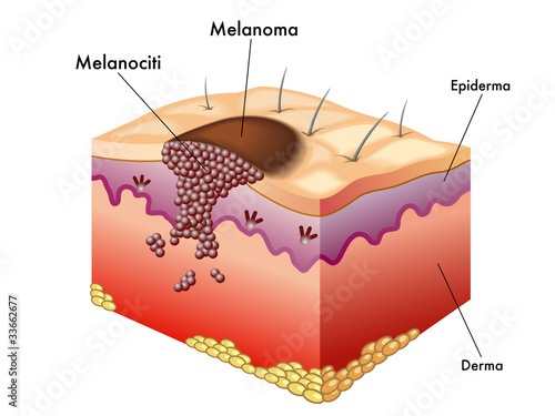 pictures of skin cancer - 799×599