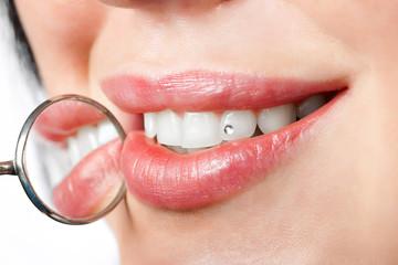 dental mouth mirror near healthy white woman teeth