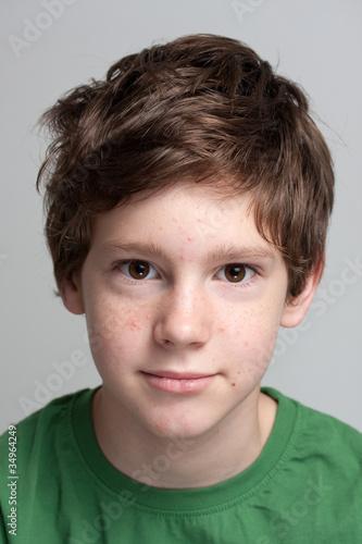 угри у мальчика в 9 лет