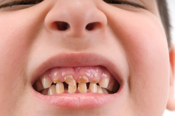 Little child  with broken and decayed teeth