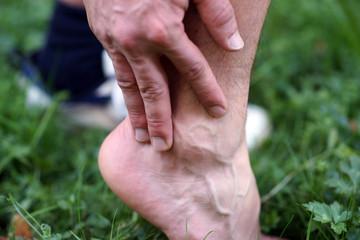 Verletzung - mit dem Fuß umgegknickt