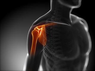3d rendered medical illustration - painful shoulder