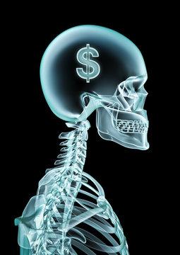 X-ray dollar