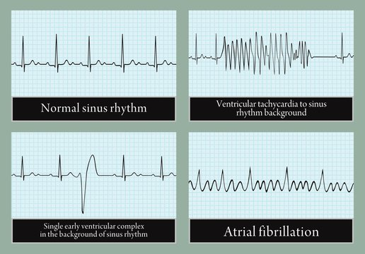 Examples of normal and abnormal ECG. Vector.