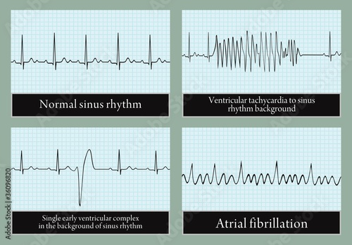 Examples Of Normal And Abnormal Ecg Vector Stock Image And