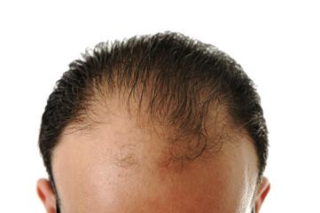 Man loosing hair, baldness Wall mural