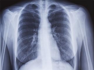 Radiographie de poumons