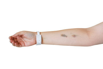 Arm with injection bruises and hospital wristband