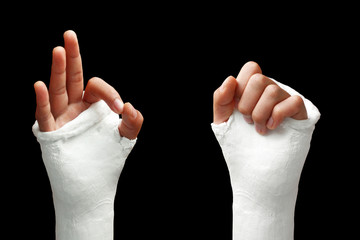 Broken arm - 05