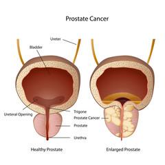 prostate and bladder medical vector illustration