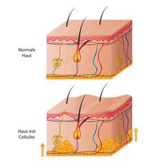 cellulite skin vector illustration eps10