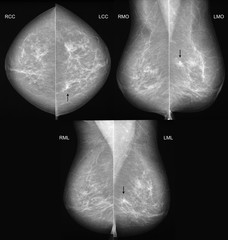 Breast cancer mammography in 3 projections