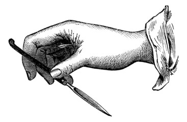 Position of the knife in the single-incision from within outward