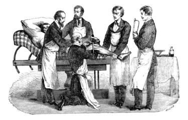 Amputation of the thigh. Positions of the surgeon and assistants