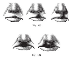 Fig. 163. Degrees of cleft lip simple,  Fig. 164. Cleft lip doub