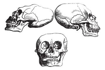 Positional plagiocephaly or Deformational plagiocephaly, vintage