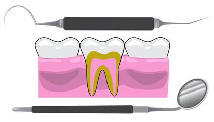 Dentist Tools