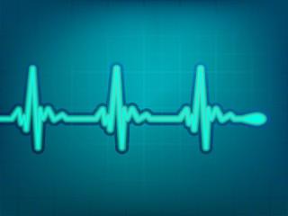 Normal electronic cardiogram. EPS 8