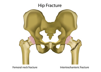 hip joint fracture medical vector illustration,english