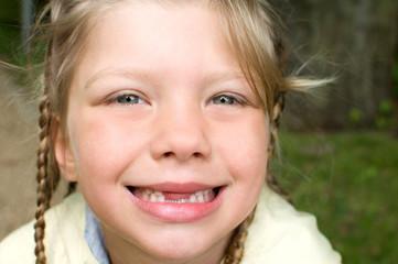 blondes Mädchen mit Zahnlücke