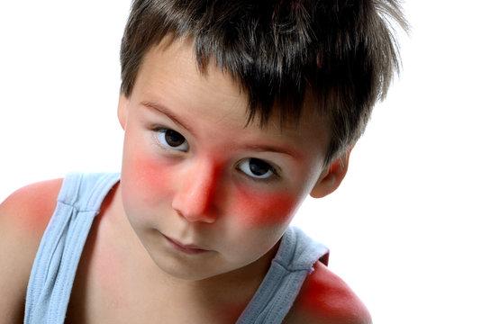 Junge mit Sonnenbrand