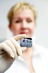 Zahnärztin mit Röntgenbild