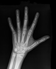 Left fist on x-ray negative film