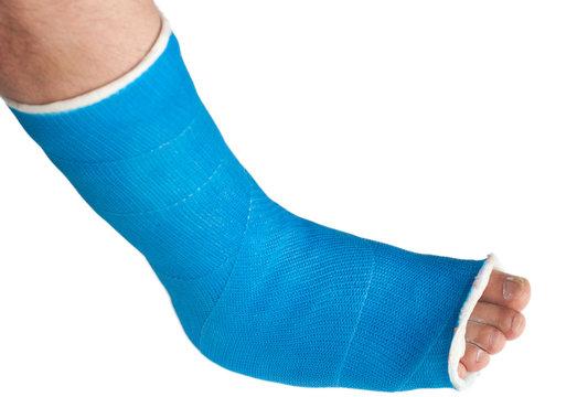 broken leg in a plaster cast