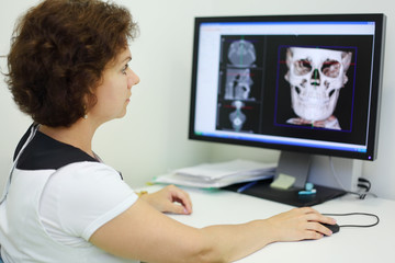 Dentist carefully looks jaw and skull X-rays at computer monitor