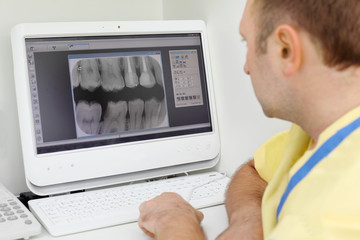 Dentist carefully looks at teeth X-rays at computer monitor
