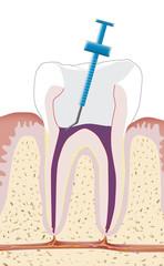 Zahnwurzelbehandlung, Endodontie 4