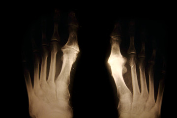 x-ray of foots