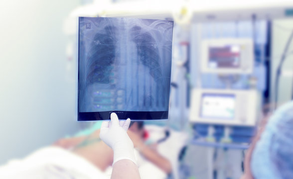 X-rays in the ICU. Doctor holding x-ray image of the chest.