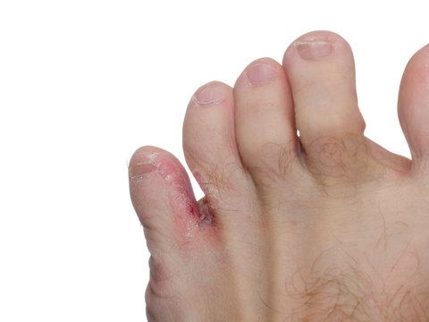 Athlete's foot (tinea pedis)