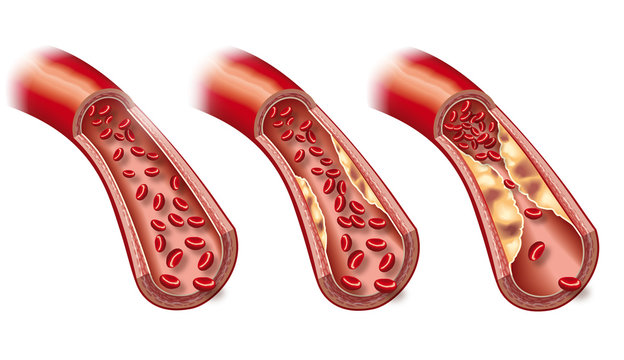 Arteriosclerosis, medically accurate 3D illustration showing healthy blood vessel and beginning  of arteriosclerosis