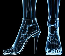 women's feet under x-ray