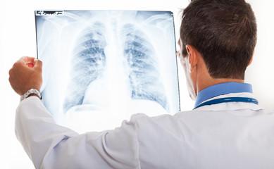 Doctor examining a radiography