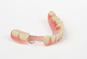 tartar denture side view