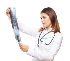 Young female doctor looking at x-ray picture of spinal column